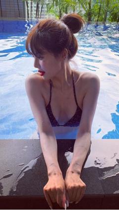 """현아 '입술 필러' 의혹 반박…""""당연하다는 듯한 키보드 악플 싫다"""""""