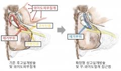 한림대 춘천성심병원, 세계 최초 '외이도 절개 없는 만성중이염 수술법' 개발