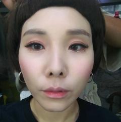 """신봉선, 코 재수술 비화 """"반려견이 못 알아봐"""""""