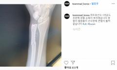 최두호, 복귀전 TKO패에 손목 골절 부상까지