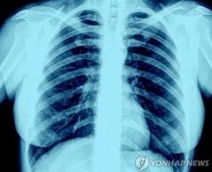 코로나19 환자, 장기 흡연자보다 폐 상태 더 나빠